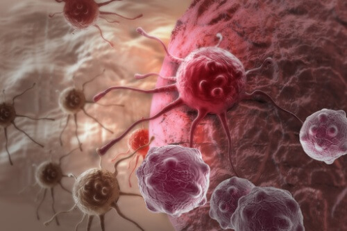 Diagnostyka nowotworowa